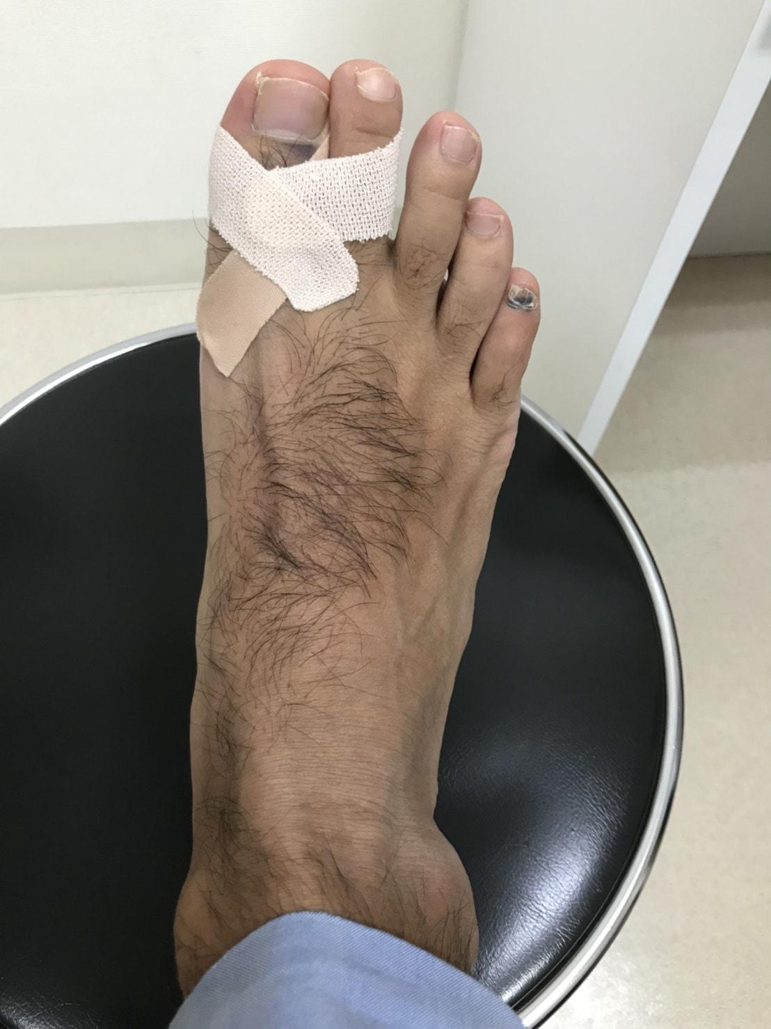 右足親指の骨折