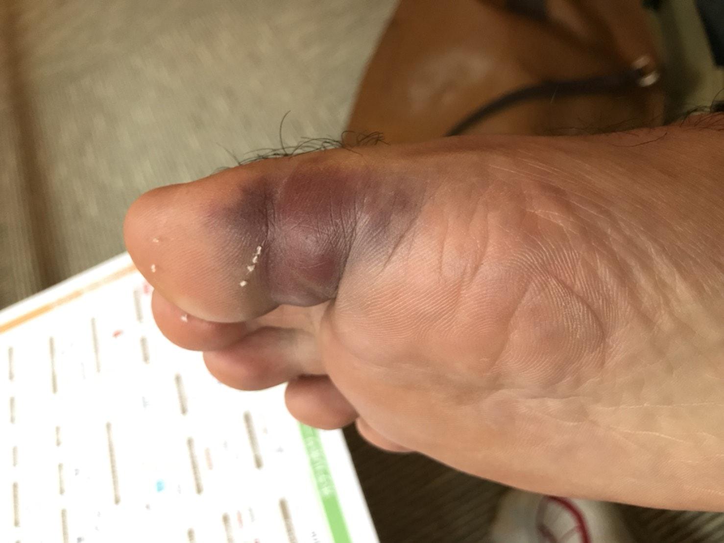 骨折した足の親指