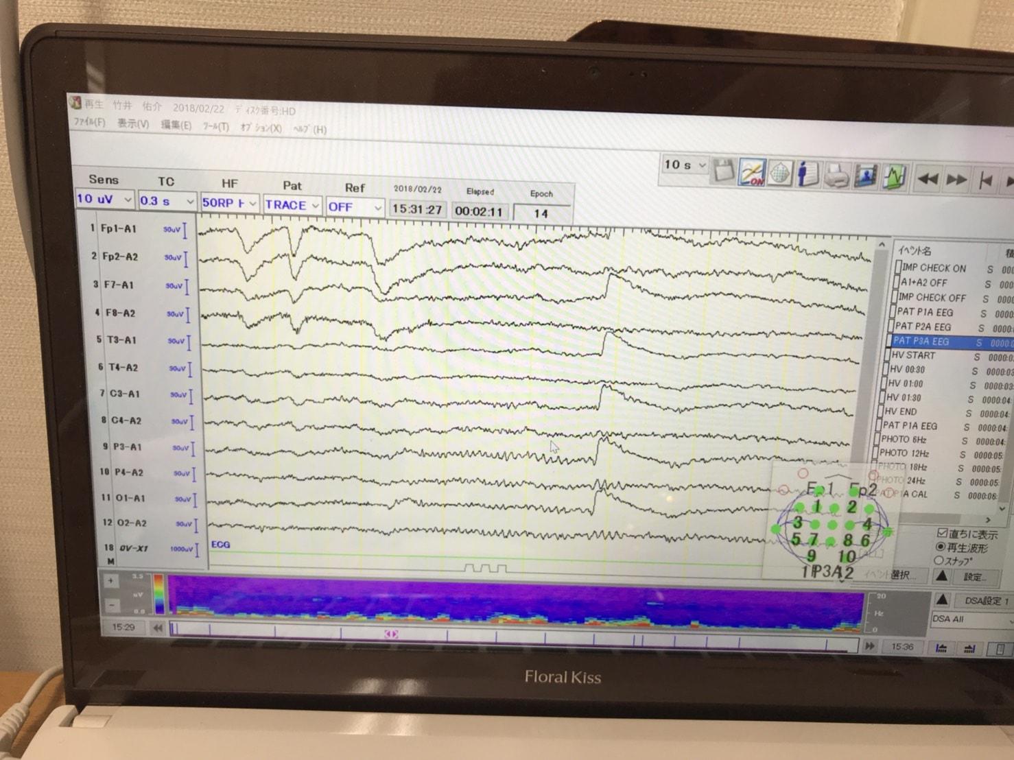 180222脳波の波形